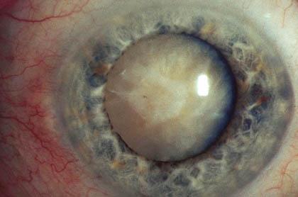 Стадия зрелой катаракты