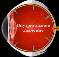 Глаукома - повышенное внутриглазное давление