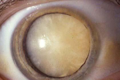 Зрелая катаракта глаза