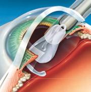 Удаление катаракты глаза с заменой хрусталика