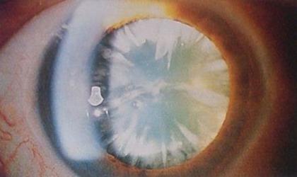 Стадия незрелой катаракты
