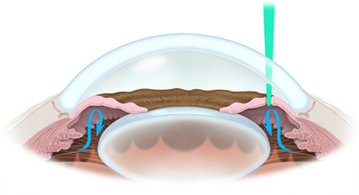 Иридотомия - лазерное лечение закрытоугольной глаукомы