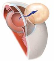Удаление катаракты методом экстракапсулярной экстракции