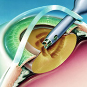 Удаление катаракты ультразвуком