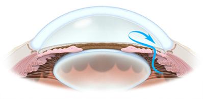 Нормализация офтальмотонуса и гидродинамики глаза
