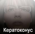 Кератоконус