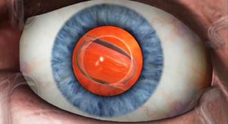 Замена хрусталика при катаракте. Искусственный хрусталик