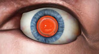 Замена хрусталика глаза у пенсионеров. Окончание операции