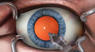 Замена хрусталика глаза у пенсионеров и у пожилых людей