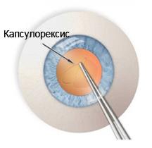 Этап операции - капсулорексис