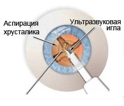 Удаление хрусталика глаза