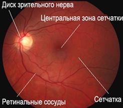 Сетчатка глаза в норме