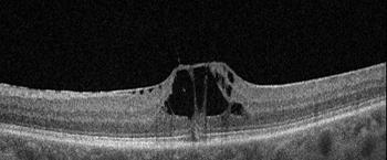 Ламеллярный разрыв сетчатки