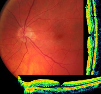 Оптическая когерентная томография (ОКТ) как инструмент точной диагностики