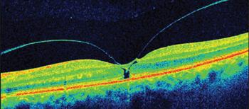 Разрыв макулы глаза I стадии по Гассу