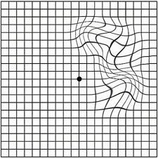 Макулярный разрыв сетчатки глаза I стадии по Гассу