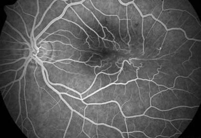 Макулярное отверстие и эпиретинальный фиброз при флюоресцентной ангиографии