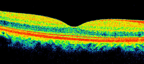 Оптическая когерентная томография макулярной зоны в норме