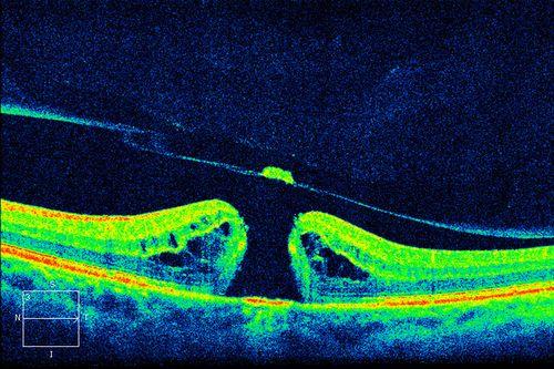 Разрыв сетчатки глаза операция цена