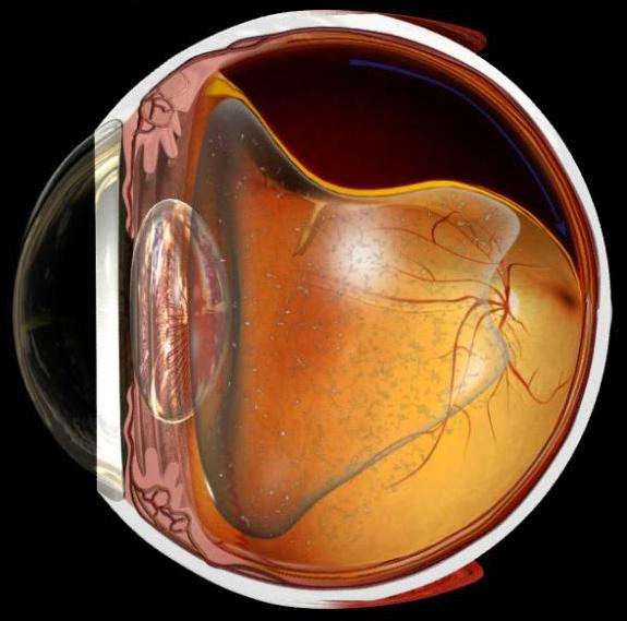 Со скольки лет делают операцию на восстановления зрения