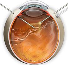 Тампонада глаза перфтором
