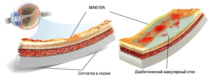диабетический макулярный отек