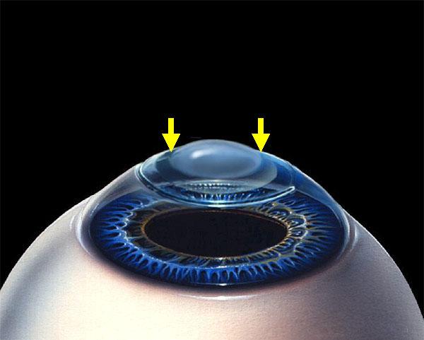 Методы восстановления зрения бейтс
