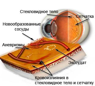 Кровоизлияние в стекловидное тело при посттромботической ретинопатии