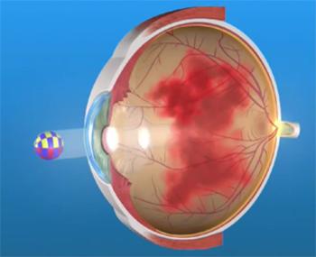 Кровоизлияние в стекловидное тело глаза