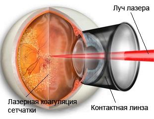 Лечение кровоизлияния в стекловидное тело глаза. Лазеркоагуляция сетчатки