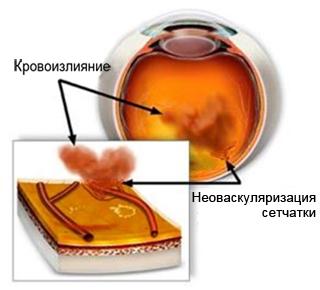 Кровоизлияние в стекловидное тело глаза. Сахарный диабет