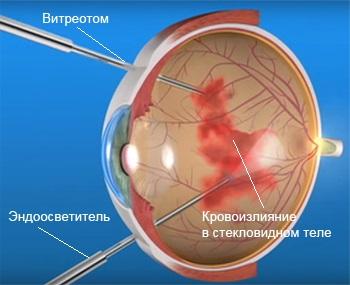 Витрэктомия при кровоизлиянии в стекловидном теле