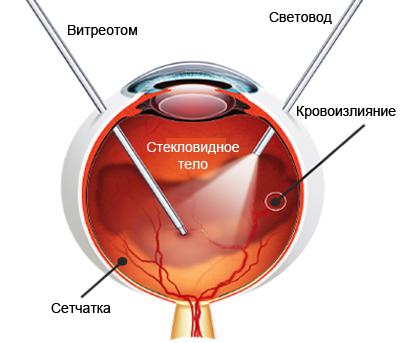 Кровоизлияние в стекловидное тело - лечение. Витрэктомия