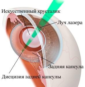 Удаление вторичной катаракты лазером