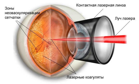 Гемофтальм глаза. Лечение. Лазеркоагуляция сетчатки