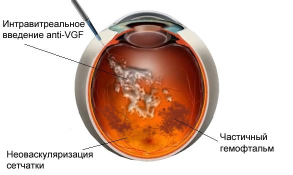 Гемофтальм глаза. Лечение антивазопролиферативными препаратами