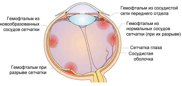 Гемофтальм. Причины гемофтальма глаза