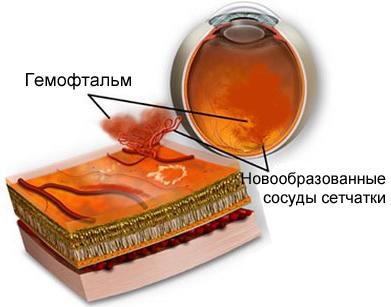 Гемофтальм глаза при диабете