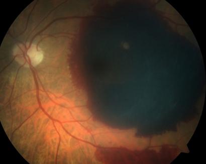 Гемофтальм глаза при дистрофии сетчатки