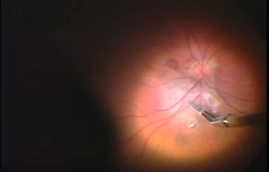 Лечение макулярной дегенерации. Экзерез субретинальной мембраны