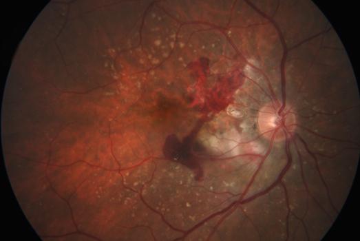 Дегенерация сетчатки. Глазное дно