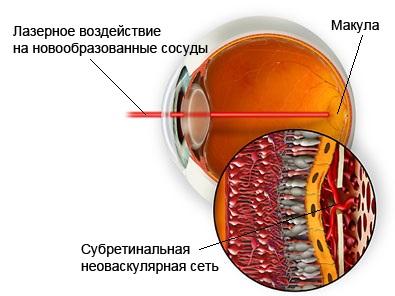 Лечение макулярной дегенерации. Фотодинамическая терапия