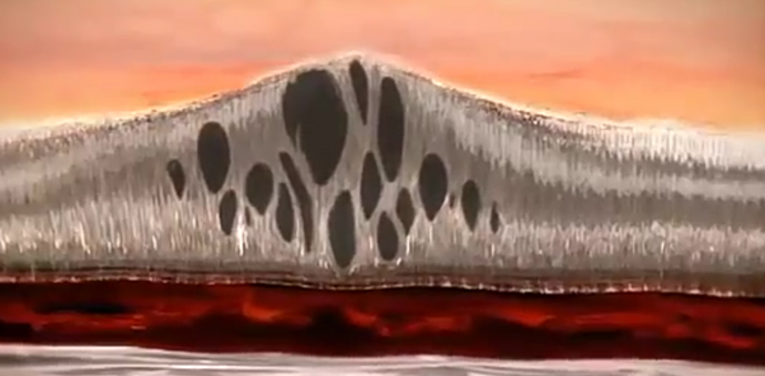 Кистозный макулярный отек сетчатки